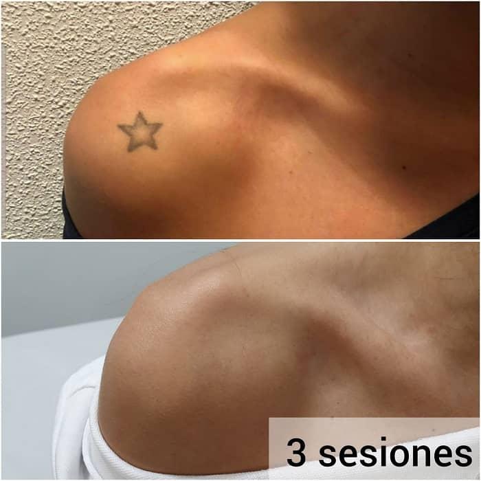eliminacion tatuaje lasser tatto madrid antes despues