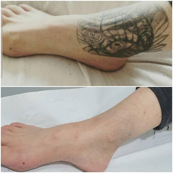 eliminacion tatuajes antes despues