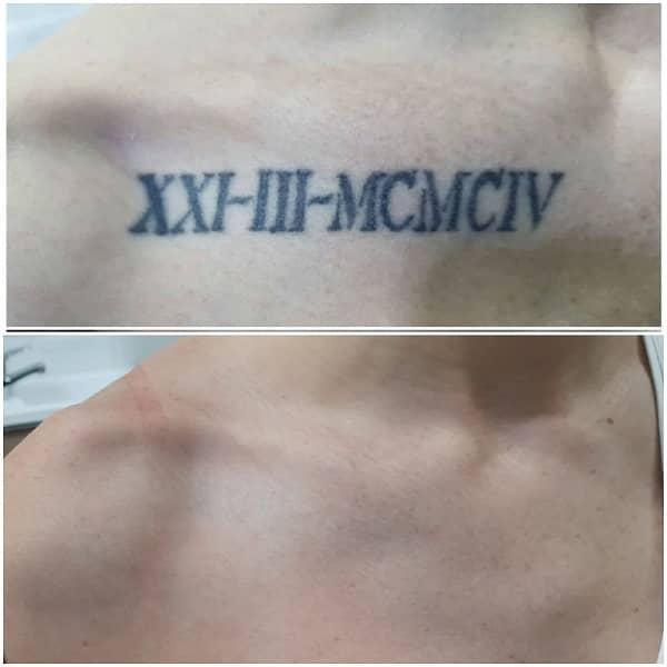 eliminar tatuajes antes despues
