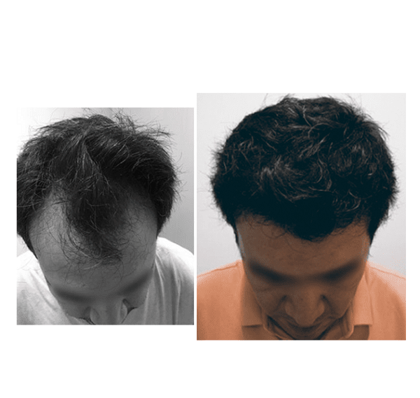 antes y despues injerto capilar madrid capilclinic