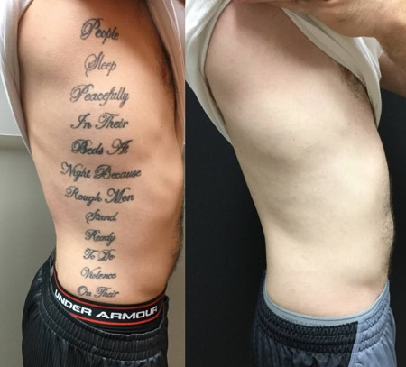 eliminar tatuajes en valencia
