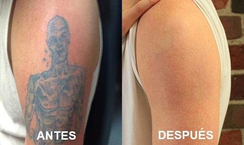 eliminar tatuajes murcia